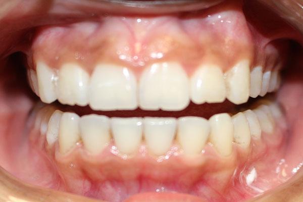 After dental crowns