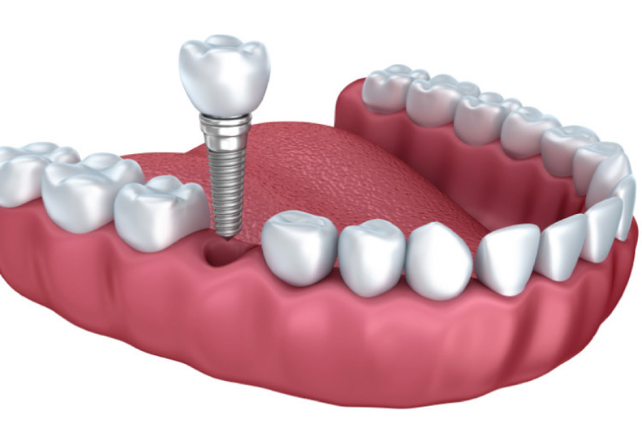 model of the lower jaw illustrating the dental implant process