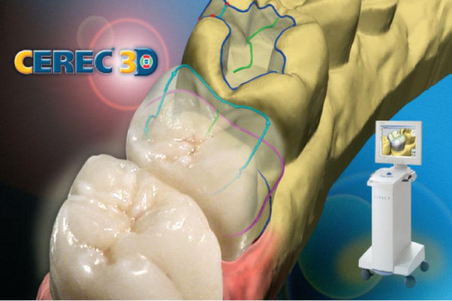 illustration of CEREC crown technology